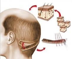 Passos para se realizar o transplante capilar