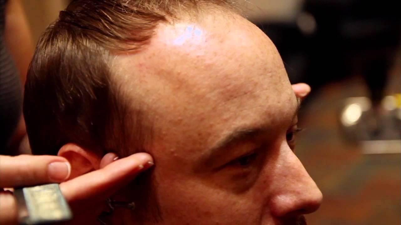 Problemas de saúde e alopecia androgenética