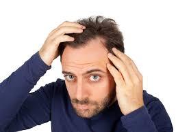 Motivos para a queda de cabelo dos homens