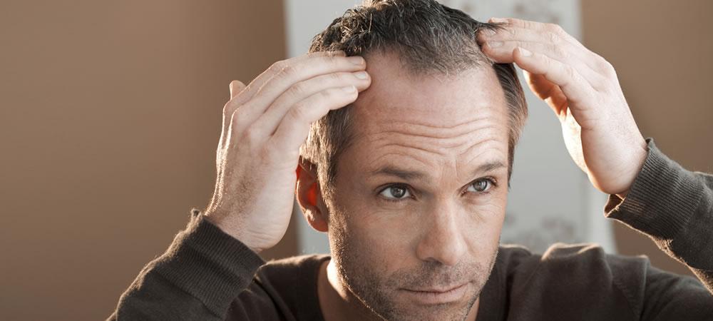 Evitar a queda excessiva de cabelo e calvície