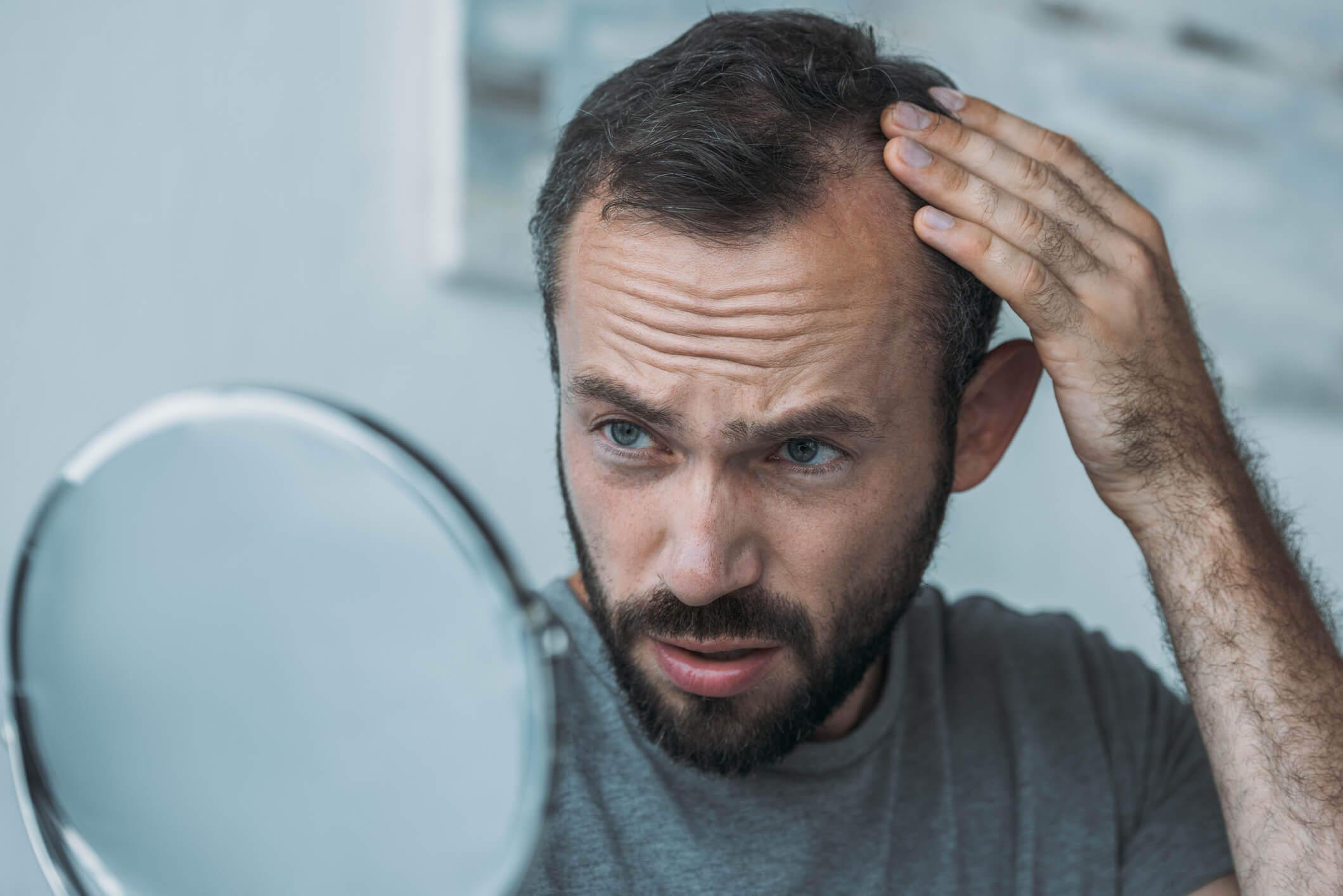 Homem verificando se está com o cabelo caindo