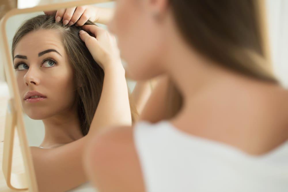Mulher com sintomas de Alopecia