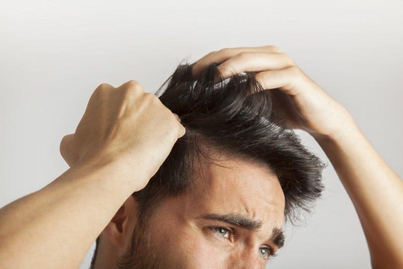 Homem coçando a cabeça e procurando saber o que é dermatite seborreica