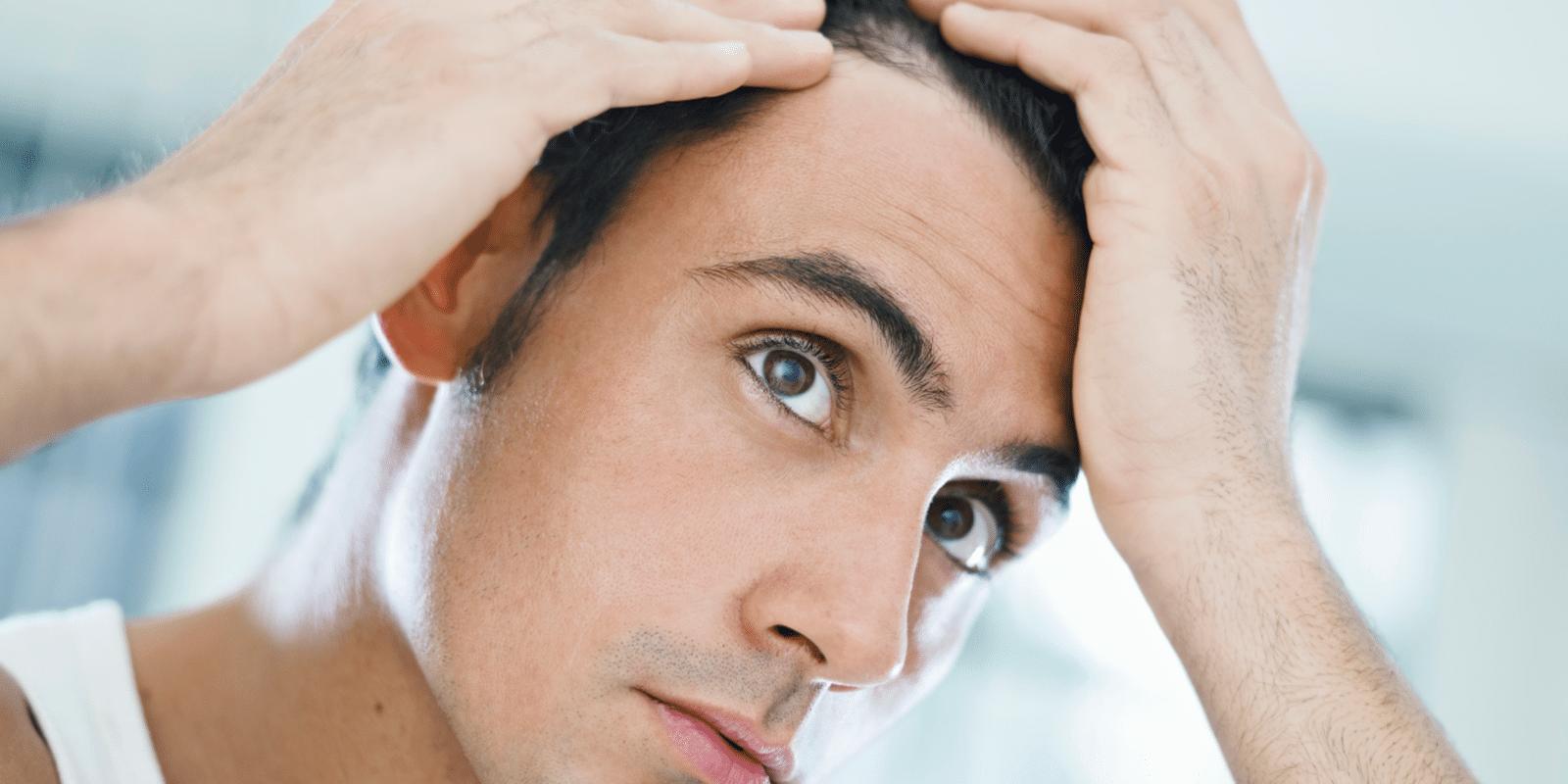 Homem pensando em como fazer implante de cabelo