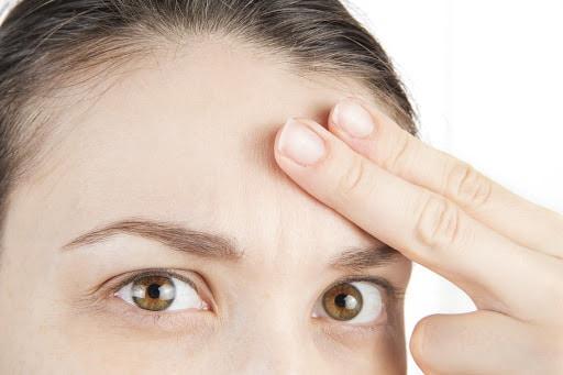 Mulher com sintomas que podem ser corrigidos com implante capilar feminino
