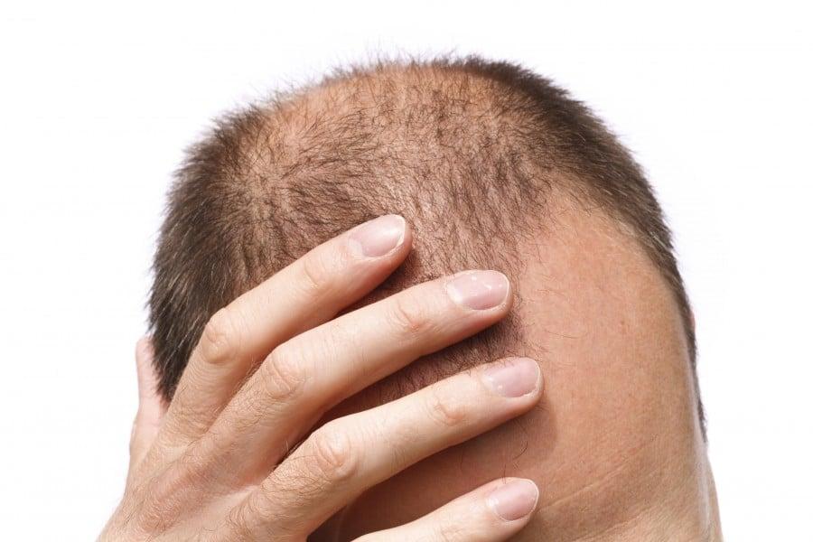 Homem procurando sobre implante de cabelo valor