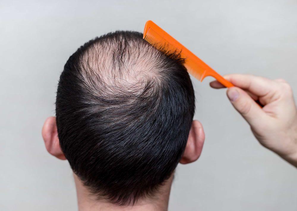 Homem que precisa tratar queda de cabelo masculino