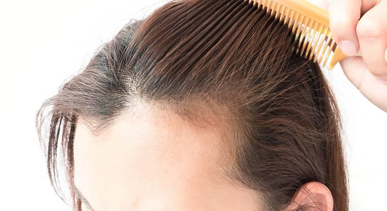 Mulher passando pente no cabelo e com dúvidas sobre implante capilar feminino preço