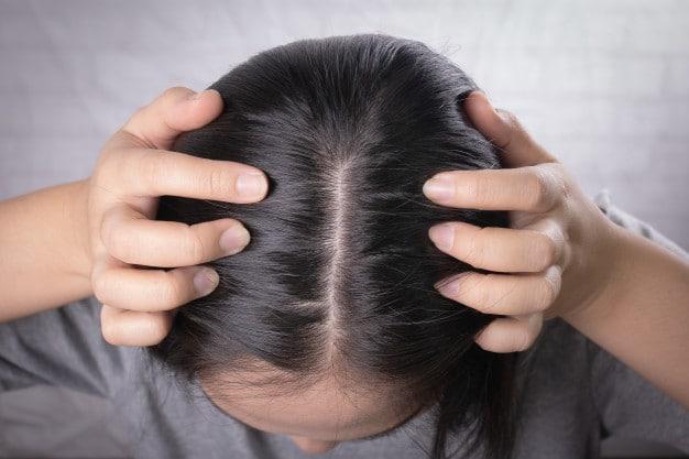 Mulher com problemas de queda dos fios e com vontade de saber sobre implante capilar feminino preço