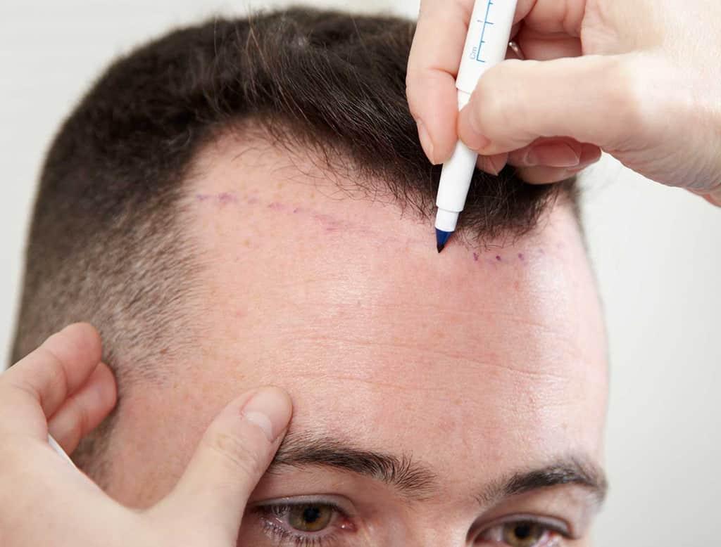 Homem sendo examinado para realizar implante capilar fio a fio