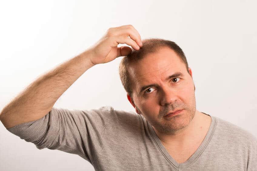 Senhor de idade com vontade de saber implante capilar masculino preço