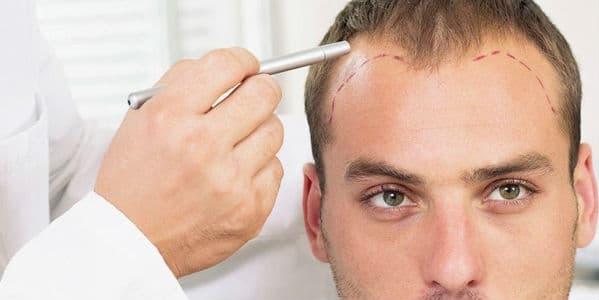 Homem sendo examinado para saber implante capilar masculino preço