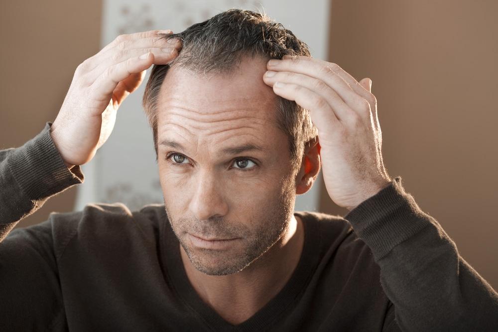 """Homem com """"buracos"""" na cabeça e querendo saber mais sobre implante capilar masculino preço"""